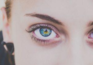 עיני אישה לאחר ניתוח הרמת עפעפיים